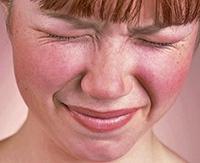 Как избавиться от купероза на носу: лечение в салоне и народными средствами