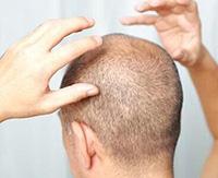 Причины, разновидности и способы лечения фолликулита на голове