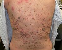 Кератоз: виды, причины возникновения и лечение кератомы кожи