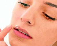 Лечение герпеса на губах — используем самые проверенные методы