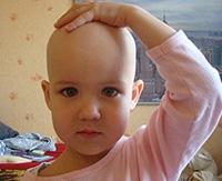 Очаговая алопеция и другие виды облысения у детей: причины и лечение
