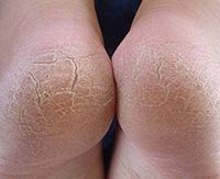 Как избавить ноги от гиперкератоза: диагностика и методы лечения