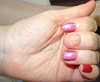 Микоз кожи рук и стоп: как избавиться от назойливой грибковой инфекции