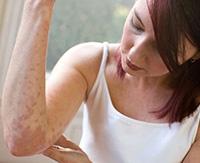 Что такое атипичный дерматит и как от него избавиться