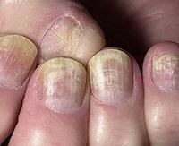 Грибок ногтей:  подбираем лечение с учетом вида возбудителя
