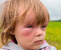 Отек Квинке - опасная аллергическая реакция у детей