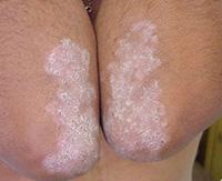 Наиболее эффективное лечение от псориаза на локтях