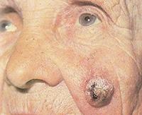 Рак кожи — какое лечение эффективно против этого страшного диагноза