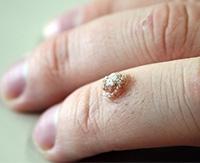 Как вывести шипицу на пальце руки: медикаментозное и домашнее лечение