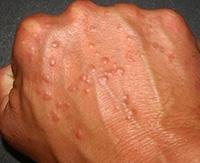 Как быстро очистить кожу на руках от прыщей