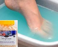 Псориаз на ногах: особенности и способы лечения псориаза стоп