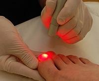 Грибок на ногтях ноги? Эффективные методы лечения онихомикоза