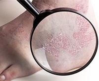 Возбудители стригущего лишая и лечение в зависимости от локализации заболевания