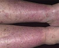 Варикозный дерматит нижних конечностей — как не дать болезни навредить ногам