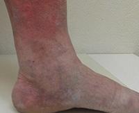 Дерматит на ногах лечение
