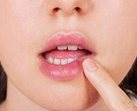 Лечение герпеса на губах народными средствами — быстрое исцеление с минимальным вредом для организма