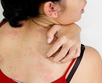 Симптомы крапивницы, лечение и профилактика обострений