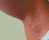 Нейрофиброматоз Реклингхаузена — как справиться с многочисленными новообразованиями