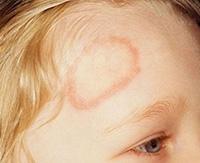 Как эффективно лечить лишай у ребенка в домашних условиях