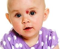 Возникновение родимых пятен у новорожденных: причины и следствия