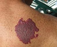 Пламенеющий невус: о чем говорит винное пятно на коже