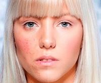 Дерматит на лице — виды заболевания, основные симптомы и лечение
