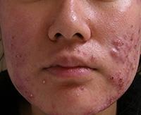 Как очистить лицо от прыщей и сделать кожу чистой и привлекательной?