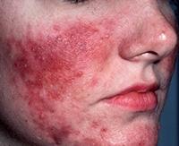 Опасна ли гиперемия кожи: эффективное лечение и методы профилактики