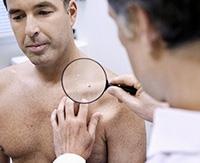 Особенности развития и лечения вируса папилломы человека у мужчин