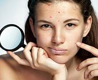 Какие бывают кожные заболевания на лице и причины появления