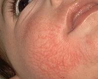 Что такое токсикодермия, причины и лечение токсико-аллергического дерматита