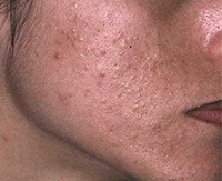 Лечение жирной и сухой себореи на лице: медикаментозные и народные средства