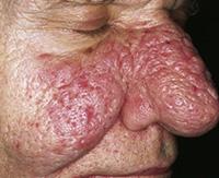 Особенности, методы диагностирования и лечения ринофимы носа