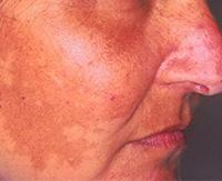 Как распознать мелазму на коже и устранить ее современными средствами