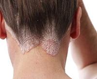 Сухая себорея кожи головы: причины развития и лечение себорейного дерматита