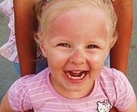 Чем лечить солнечный ожог у ребенка: средства и мази от ожога кожи