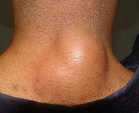 Причины появления липомы на шее и методы лечения новообразования