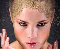 Методы лечения и профилактики жирной себореи на голове
