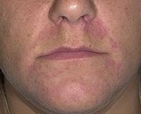 Почему появляется потница на лице и как ее вылечить?