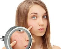 Как избавиться от комедонов на лице: различные средства и методы лечения