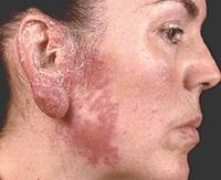 Как выглядит туберкулез кожи, как диагностировать и как лечить заболевание?