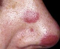 Саркома Капоши: признаки, формы, течение, диагностика, как лечить ангиосаркому