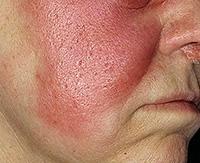 Причины и симптомы рожистого воспаления кожи, как лечить рожу медикаментами и диетой