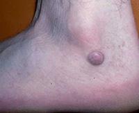 Дерматофиброма кожи: ее отличие от родинки и методы удаления