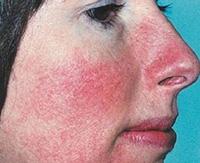 Эффективные методы лечения рожистого воспаления кожи лица