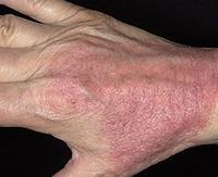 Что такое дерматоз кожи, симптомы и лечение у взрослых и беременных