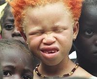 Альбинизм — врождённое отсутствие пигмента меланина. Чем опасна данная патология?
