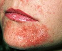 Рацион питания при аллергическом дерматите — пример диеты