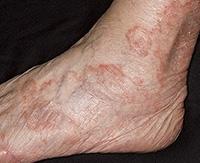 Медикаментозные и народные способы лечения экземы на ногах