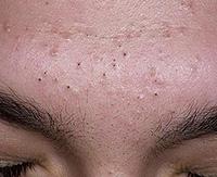 Как удалить черные угри на коже: эффективные способы лечения комедонов